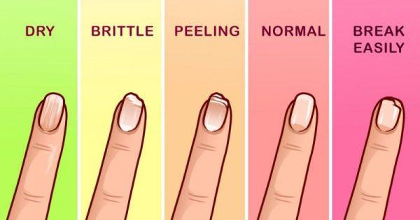 Τι δείχνουν τα Νύχια σας για την Υγεία σας (8 φωτογραφίες)