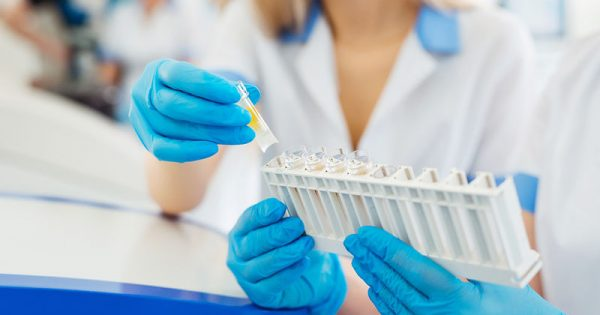 Καρκινικοί δείκτες: Ποιοι είναι & πώς χρησιμοποιούνται για την ανίχνευση του καρκίνου