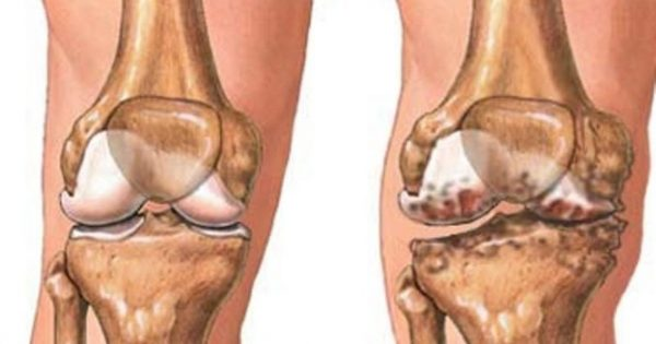 Οστεοαρθρίτιδα γόνατος: Η ολική αρθροπλαστική δεν είναι μονόδρομος