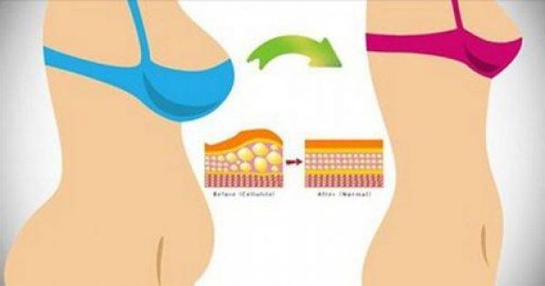 5 έξυπνοι τρόποι για να χάσετε λίπος από την περιοχή της κοιλιάς, χωρίς καθόλου άσκηση!