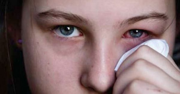Σύνδρομο Sjögren: Μέσος όρος χρόνου διάγνωσης σε ασθενή με συμπτώματα τα 4,7 χρόνια