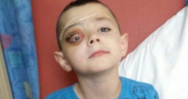7χρονος μεταφέρεται στο νοσοκομείο με φριχτούς πόνους στο μάτι. μόλις τον εξέτασαν οι γιατροί; τους σηκώθηκε η τρίχα!