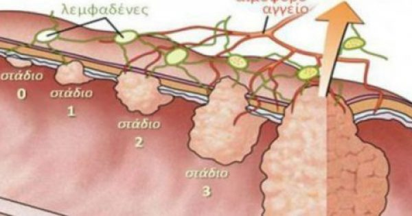 Καρκίνος του παχέος εντέρου: Αν έχετε αυτά τα συμπτώματα τρέξτε απευθείας στον γιατρό!