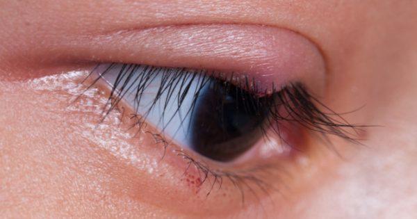 Τι να κάνετε για το κριθαράκι στο μάτι
