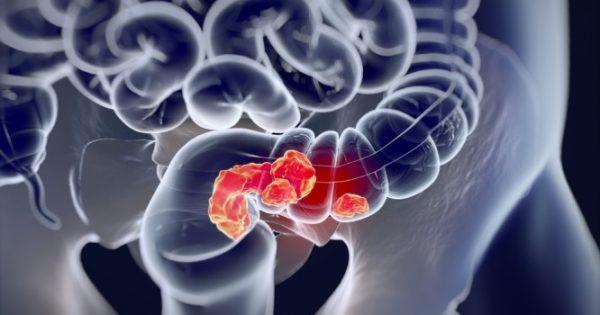Καρκίνος του παχέος εντέρου: Αυξάνονται οι θάνατοι στους νέους και κανείς δεν ξέρει το γιατί – Ψάχνονται οι ειδικοί