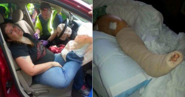 Γιατί να μην βάζετε ΠΟΤΕ τα πόδια στο ταμπλό του αυτοκινήτου – Δείτε τι της έκανε ο αερόσακος σε ελαφρύ τρακάρισμα [vid, pics]
