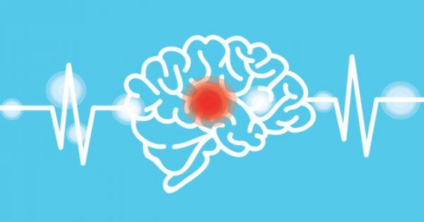 Εγκεφαλικό: Προσοχή στα πρώιμα συμπτώματα – Πώς μπορείτε να το προλάβετε