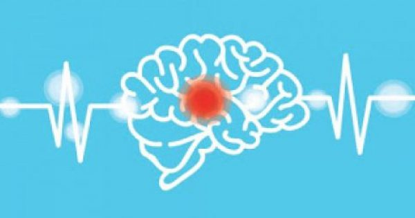 Εγκεφαλικό: Προσοχή στα πρώιμα συμπτώματα – Πώς μπορείτε να το προλάβετε…