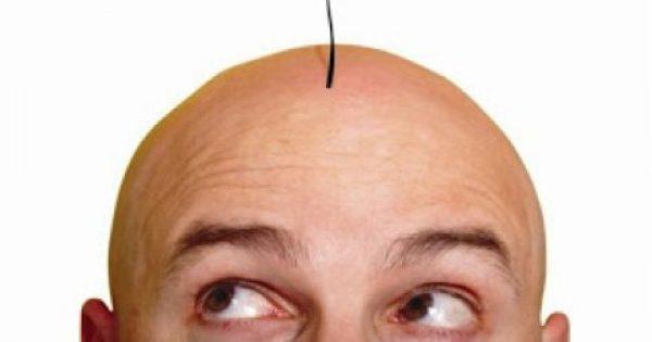 Υπάρχει θεραπεία για τη φαλάκρα; Κι όμως ναι…