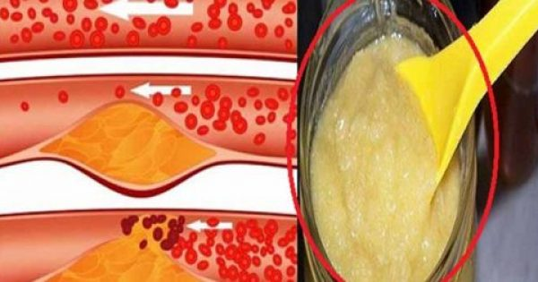 Με λίγες κουταλιές πείτε ΑΝΤΙΟ σε φραγμένες αρτηρίες, υπέρταση, χοληστερόλη!