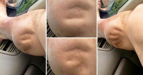 Η… εξωγήινη κράμπα που έγινε viral – Δείτε πώς γίνεται το πόδι του! [vid]