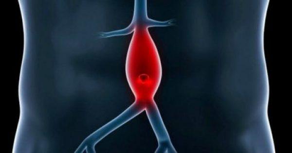 Ανεύρυσμα καρδιάς: Δείτε πού οφείλεται και τι μπορεί να προκαλέσει