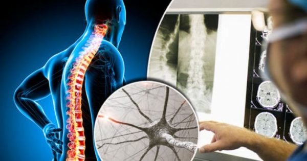 Νόσος κινητικού νευρώνα: Μεγάλη προσοχή αν νιώθετε αδυναμία στις αρθρώσεις!!!
