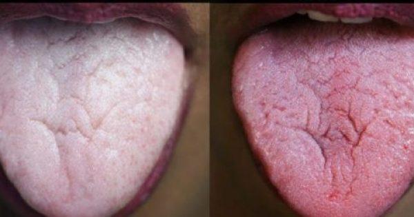 Μήπως μυρίζει άσχημα η Αναπνοή σας; Δείτε ΠΟΙΑ είναι η αιτία της Κακοσμίας του Στόματος και ΠΩΣ να την Αντιμετωπίσετε!