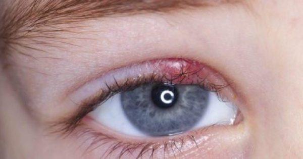 Κριθαράκι στο μάτι: Δείτε ΤΙ το προκαλεί και 11 φυσικές θεραπείες για να το καταπολεμήσετε