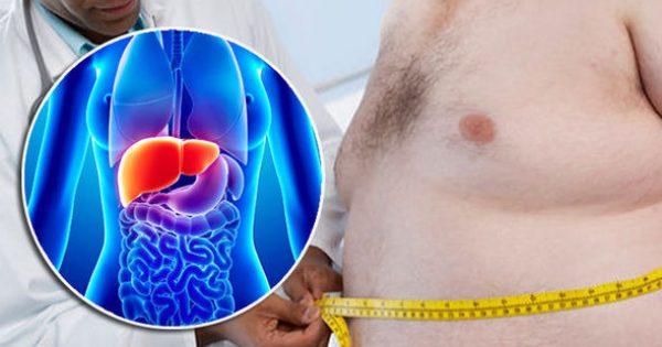 Λιπώδες ήπαρ: Η νέα «μάστιγα» του Δυτικού κόσμου – Προσοχή στα συμπτώματα