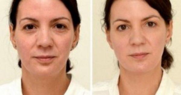 Δείτε την απίστευτη αλλαγή 42χρονης, που έπινε 3 λίτρα νερό την ημέρα, επί 1 μήνα! (photos)