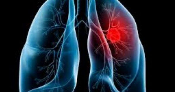 Πώς να φτιάξετε μόνοι σας… ποτό καθαρισμού των πνευμόνων