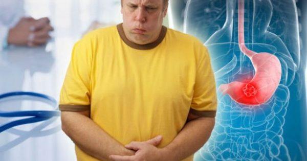 Καρκίνος του στομάχου: Τα πρώιμα σημάδια που τα μπερδεύουμε με άλλες παθήσεις – Προσοχή!!!