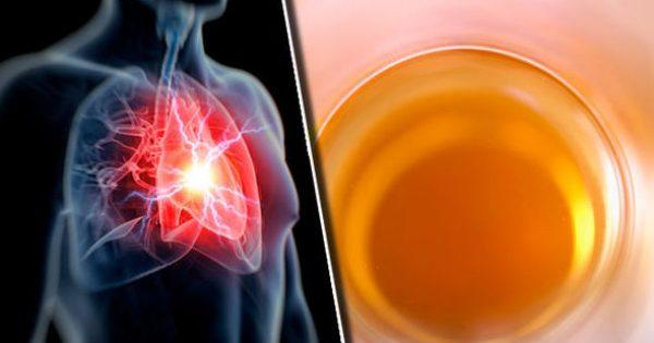 Καρδιακή νόσος: Αν πιείτε ΑΥΤΟ με το πρωινό μειώνετε τον κίνδυνο για την καρδιά