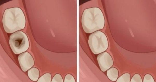 Κίτρινα και σάπια δόντια; Δείτε 5 πολύτιμες συμβουλές τρόπους για καλή στοματική υγιεινή και αστραφτερό χαμόγελο!