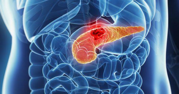 Καρκίνος παγκρέατος: Η πρόοδος οδηγεί σε καλύτερη πρόγνωση
