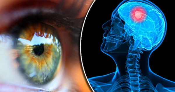Ποιες σοβαρές παθήσεις φαίνονται στα μάτια – Πέντε περιπτώσεις που ένα τεστ σώζει ζωές