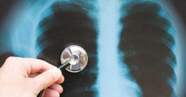 Διδάγματα από την πολυανθεκτική φυματίωση: Περικοπές και υποστελέχωση μας δυσκολεύουν!!!