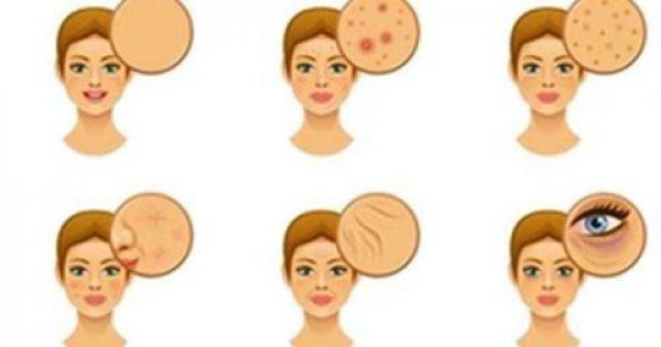 5 Ανεπάρκειες Βιταμινών Που Είναι Γραμμένες Στο Πρόσωπό Σας & Πώς Να Τις Αντιμετωπίσετε