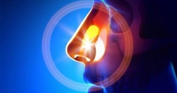 Φυσικές θεραπείες για την ιγμορίτιδα