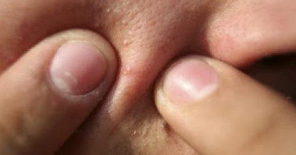 """Γιατί πρέπει να μην """"σπάτε"""" τα σπυράκια – Τι συμβαίνει στο δέρμα"""