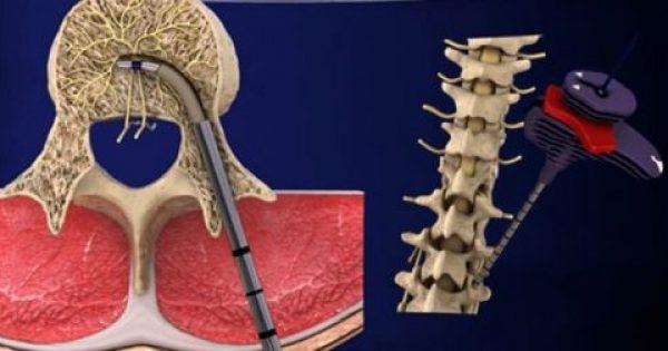 Ανακαλύψτε τη νέα θεραπεία για τον χρόνιο πόνο στη μέση