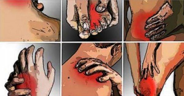 10 τρόποι για να απαλλαγείτε από την φλεγμονή και τον πόνο στις αρθρώσεις!!