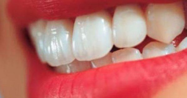 Έξυπνα μυστικά για λεύκανση δοντιών