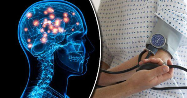 Η υπέρταση στα 30 συνδέεται με πρόβλημα στον εγκέφαλο! [vid]