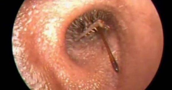 Αυτή η φρικτή ανακάλυψη των γιατρών είναι ακριβώς ο λόγος για να καθαρίζετε σωστά τα αυτιά σας.
