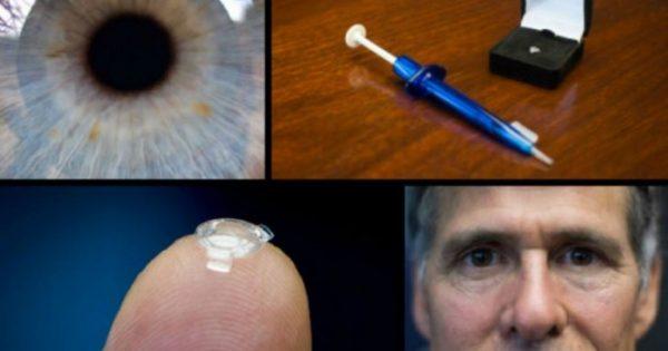Βιονικός φακός βάζει τέλος σε γυαλιά και φακούς επαφής – Δείτε πώς λειτουργεί [vid]