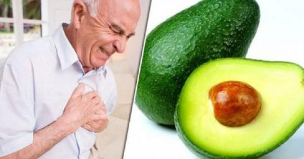 Γιατί ξαφνικά οι γιατροί λένε να τρώμε αβοκάντο και μπανάνες