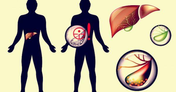 Πέτρες στην χολή: Συμπτώματα, αντιμετώπιση και πρόληψη