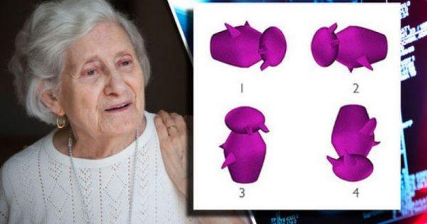 Τεστ για Αλτσχάιμερ: Βλέπετε ποιο σχήμα διαφέρει από τα άλλα; Τι λένε επιστήμονες!!!-ΒΙΝΤΕΟ