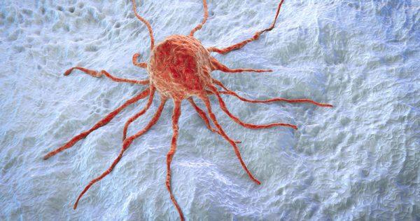 Μετάσταση καρκίνου: Ο καθοριστικός ρόλος της χοληστερίνης