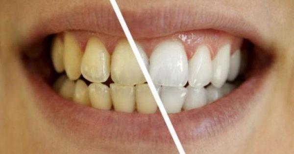 Το «μαγικό» διάλυμα για πιο αστραφτερά δόντια με το βούρτσισμα