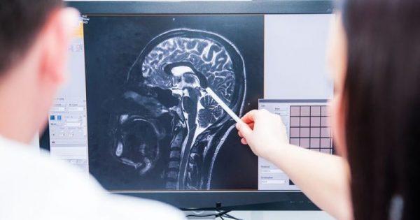 Έρευνα: Η σχιζοφρένεια διαταράσσει όλο το σύστημα επικοινωνιών του εγκεφάλου!!!