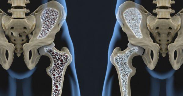 Παγκόσμια Ημέρα Οστεοπόρωσης: Πολύ χαμηλή η πρόσληψη ασβεστίου σε πολλές χώρες – Υπολογίστε ΕΔΩ πόσο ασβέστιο παίρνετε