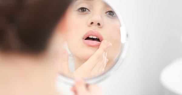 Έλκη στο στόμα: Απαλλαγείτε με αυτά τα 6 «γιατροσόφια»