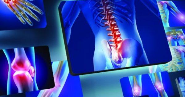 Μυοσκελετικές παθήσεις: Γιατί αλλάζει ο τρόπος αντιμετώπισης