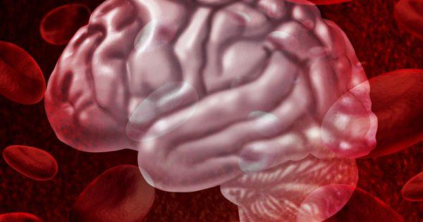 Νέα μέθοδος Brainpath για τις εγκεφαλικές αιμορραγίες και τους όγκους