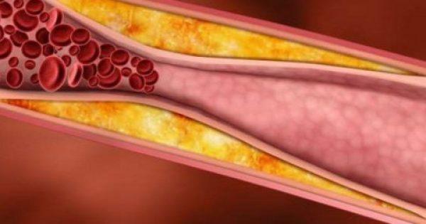 Καρδιοχειρουργός μιλάει για την απάτη της χοληστερίνης…