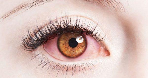 Κοκκίνισμα ματιών: 7 πιθανές αιτίες και τι μπορείτε να κάνετε!!!