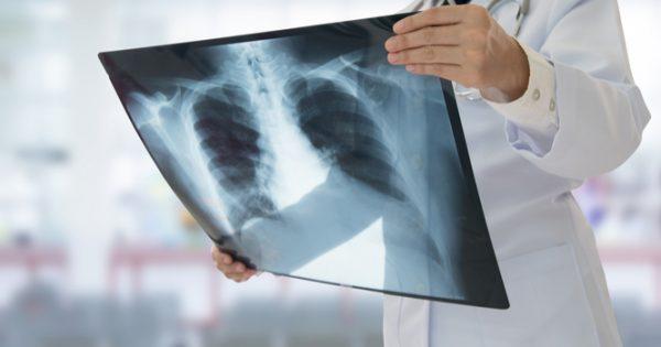 Πνευμονία: Ένας δολοφόνος υπεράνω υποψίας